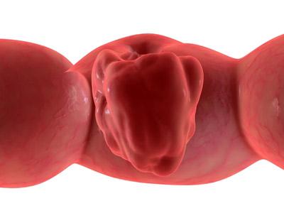 avastin structure. images Cancer drug Avastin