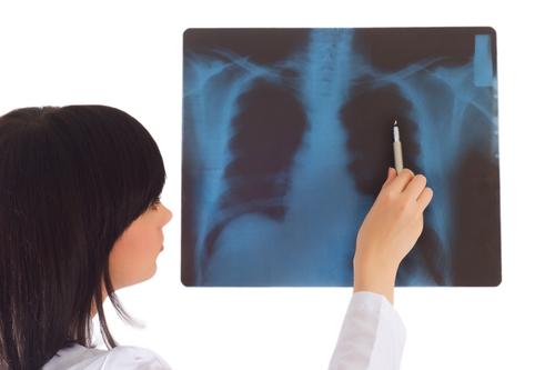 lung_cancer_awareness_scan_blog_Feb09.jpg